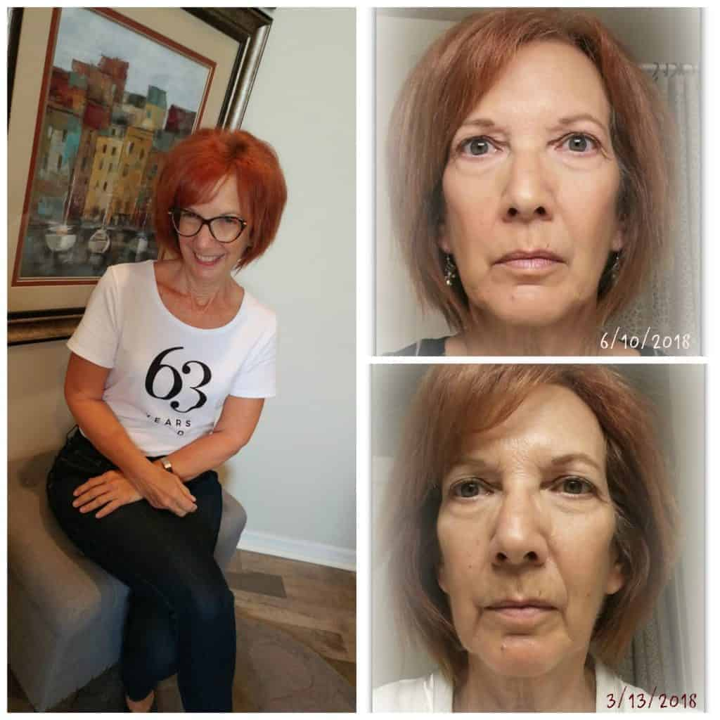 Facial Magic Natural Face Lift at home, how to do a facelift at home