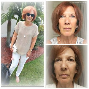 Facial Magic Natural Face Lift