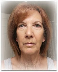 natural face lift after 3 weeks