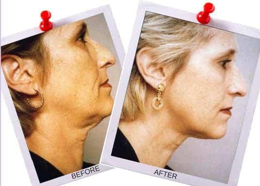 facial magic double chin