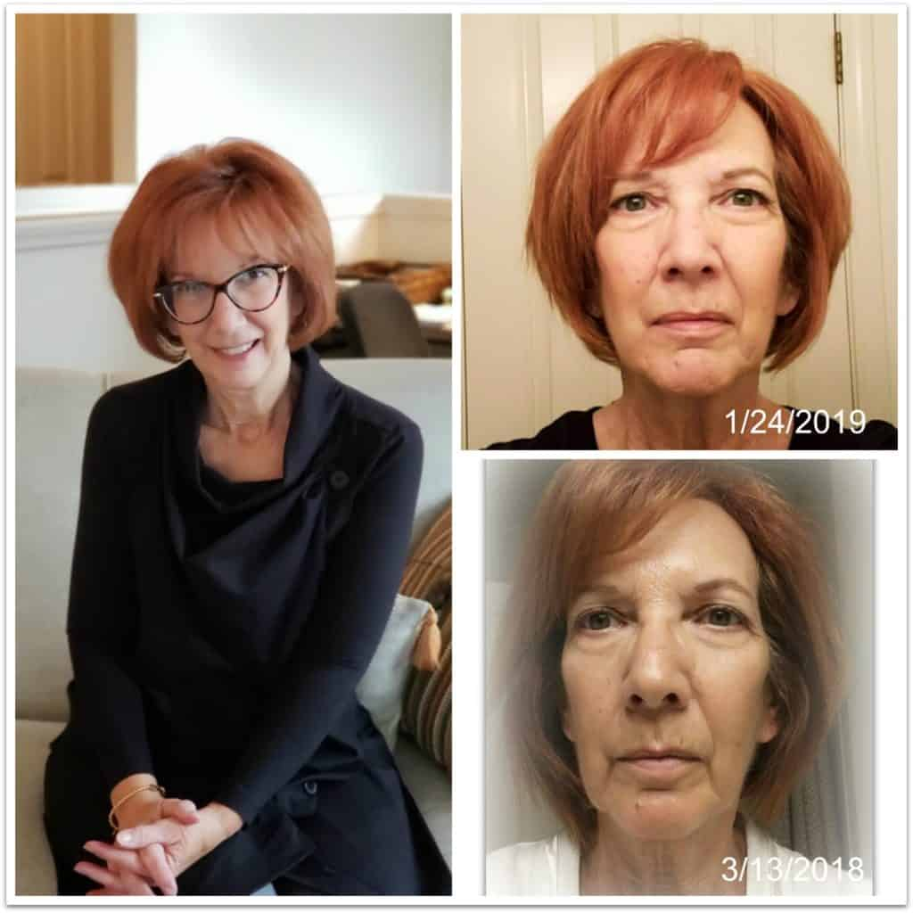 How to tighten face skin naturally at home, including face tightening procedures