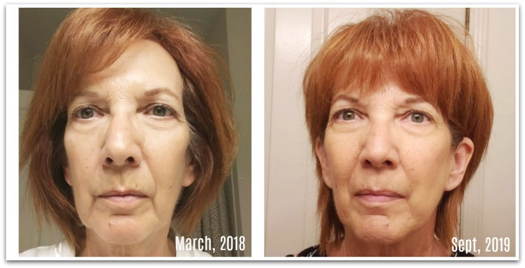 Facial Magic natural face lift after 18 months at 64 years old
