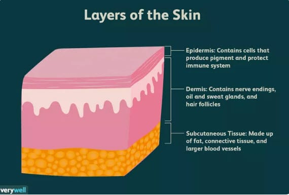 an image of the layers of the human skin